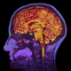 Return Health Believes Psychedelics Can Treat Dementia